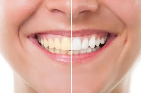 Effective Tips to Whiten Your Teeth